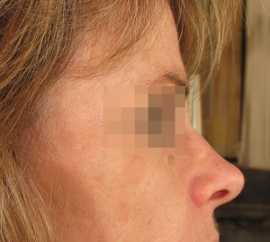 remodelage du nez - acide hyaluronique