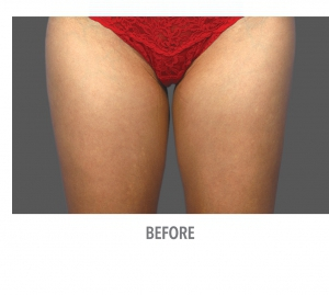 Coolsculpting Cuisse